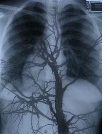 árvore_nos_pulmões